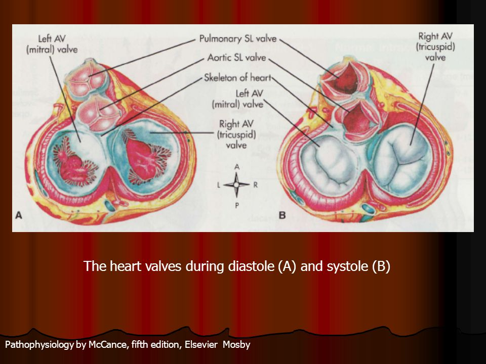 Pathophysiology by McCance, fifth edition, Elsevier Mosby The heart valves during diastole (A) and systole (B)