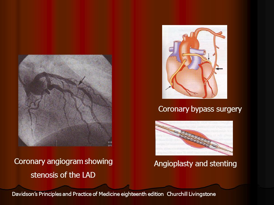 Coronary angiogram showing stenosis of the LAD Angioplasty and stenting Coronary bypass surgery Davidson's Principles and Practice of Medicine eightee
