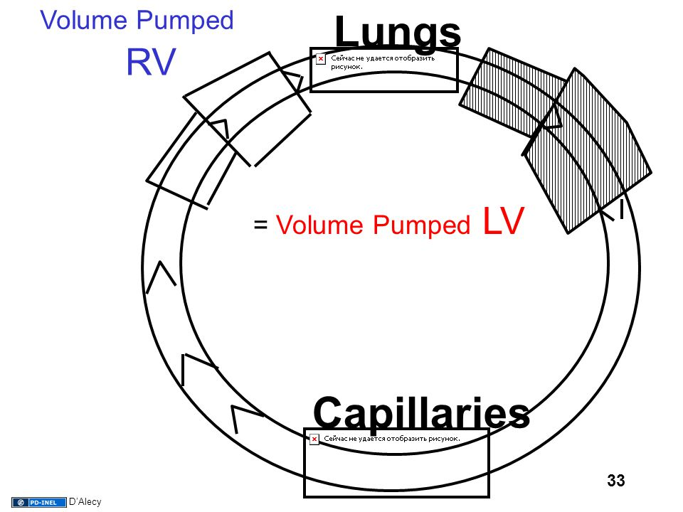33 Capillaries Lungs RV = Volume Pumped LV Volume Pumped D'Alecy
