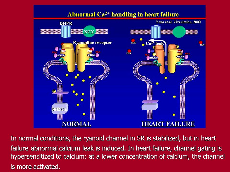In normal conditions, the ryanoid channel in SR is stabilized, but in heart failure abnormal calcium leak is induced. In heart failure, channel gating