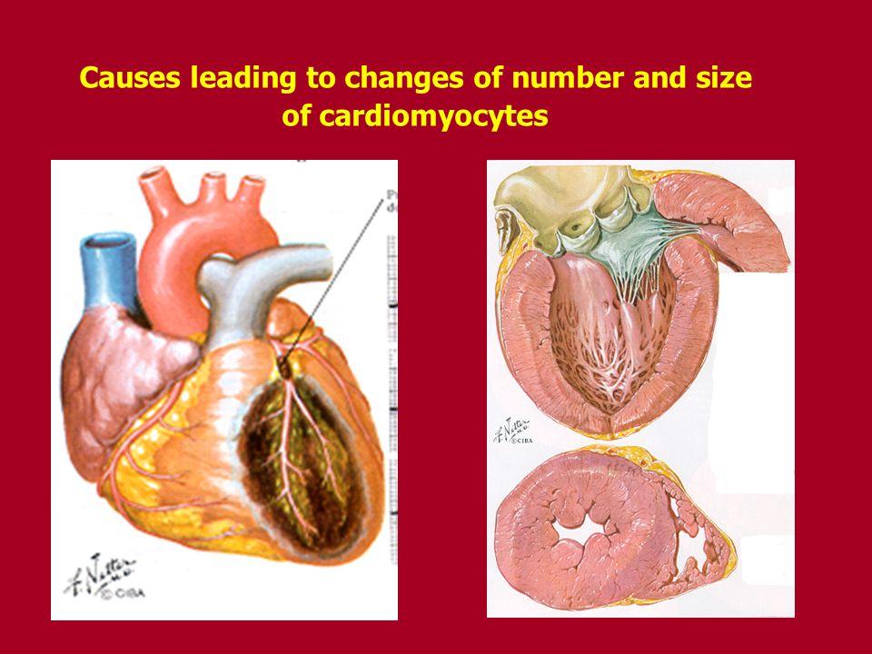Main causes and pathomechanisms of diastolic Main causes and pathomechanisms of diastolic heart failure heart failure 1.