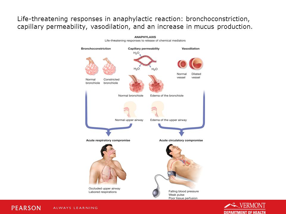 Life-threatening responses in anaphylactic reaction: bronchoconstriction, capillary permeability, vasodilation, and an increase in mucus production.
