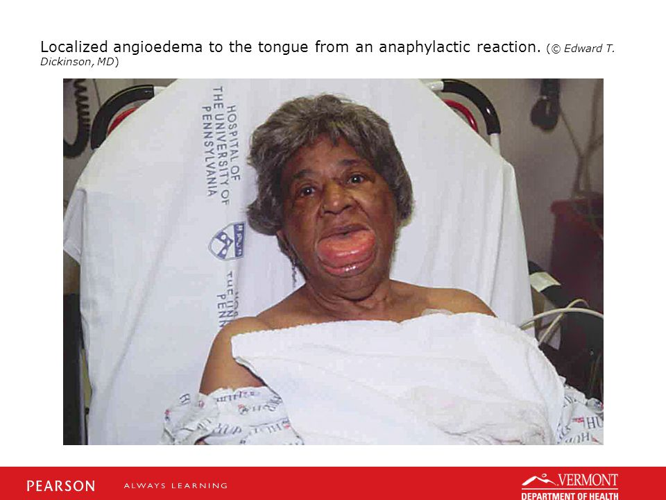 Localized angioedema to the tongue from an anaphylactic reaction. (© Edward T. Dickinson, MD)