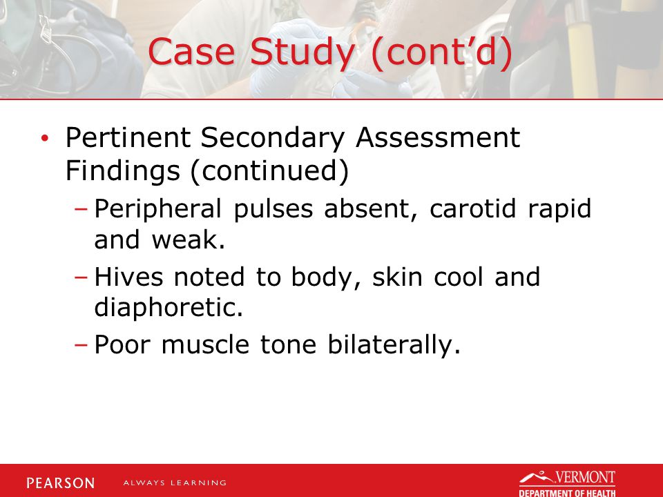 Case Study (cont'd) Pertinent Secondary Assessment Findings (continued) –Peripheral pulses absent, carotid rapid and weak. –Hives noted to body, skin