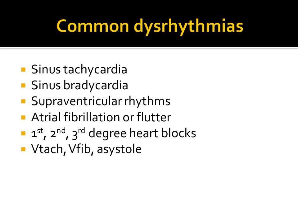  Sinus tachycardia  Sinus bradycardia  Supraventricular rhythms  Atrial fibrillation or flutter  1 st, 2 nd, 3 rd degree heart blocks  Vtach, Vf