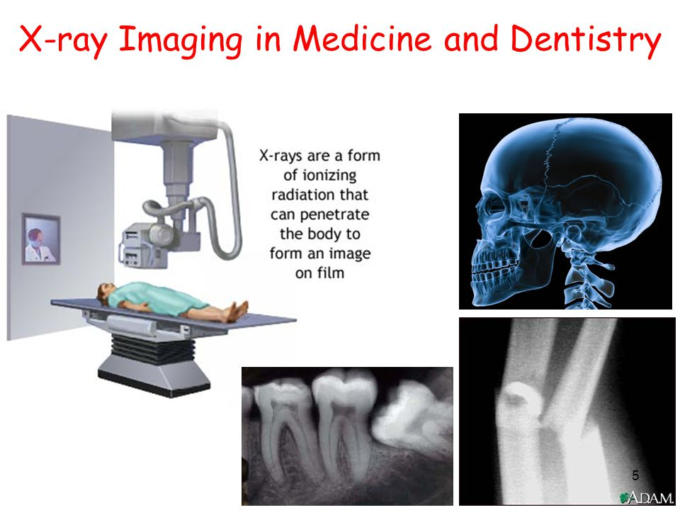 5 X-ray Imaging in Medicine and Dentistry 5