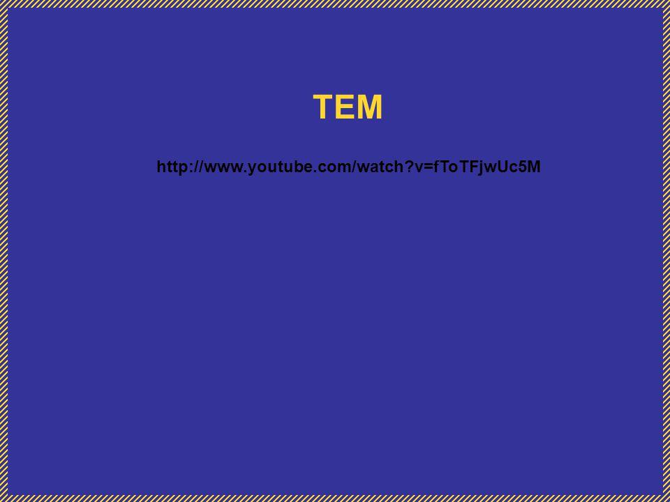 TEM http://www.youtube.com/watch?v=fToTFjwUc5M