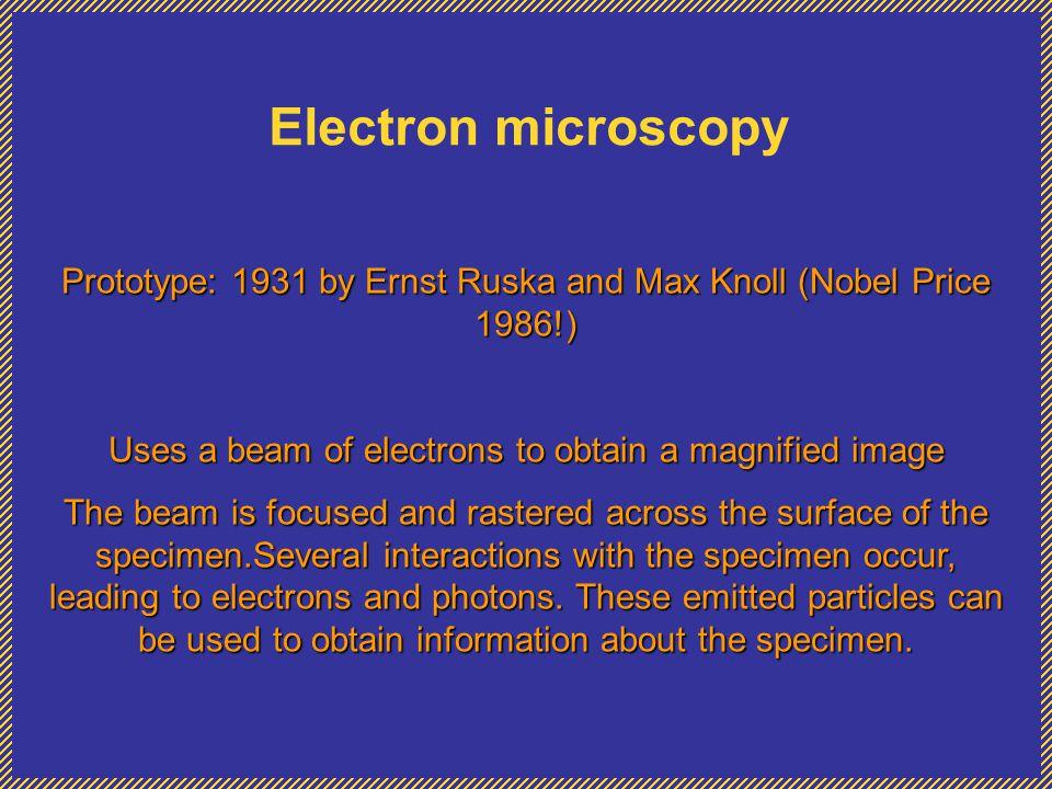 Electron microscopy Where is Electron Microscopy used.