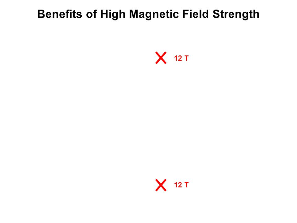 Benefits of High Magnetic Field Strength 12 T