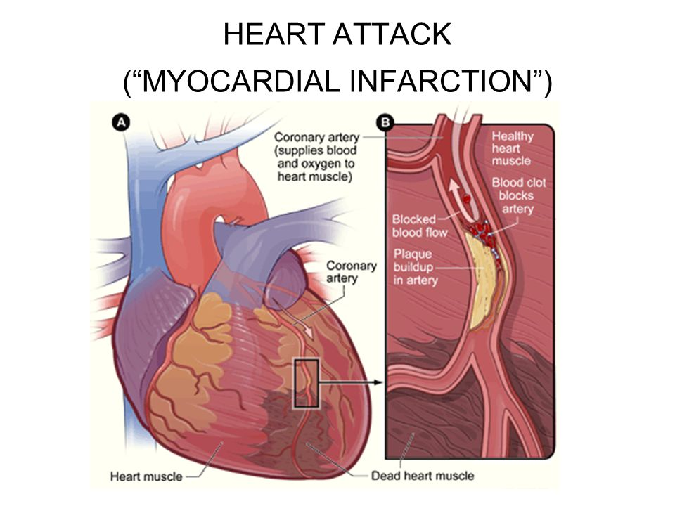 "HEART ATTACK (""MYOCARDIAL INFARCTION"")"