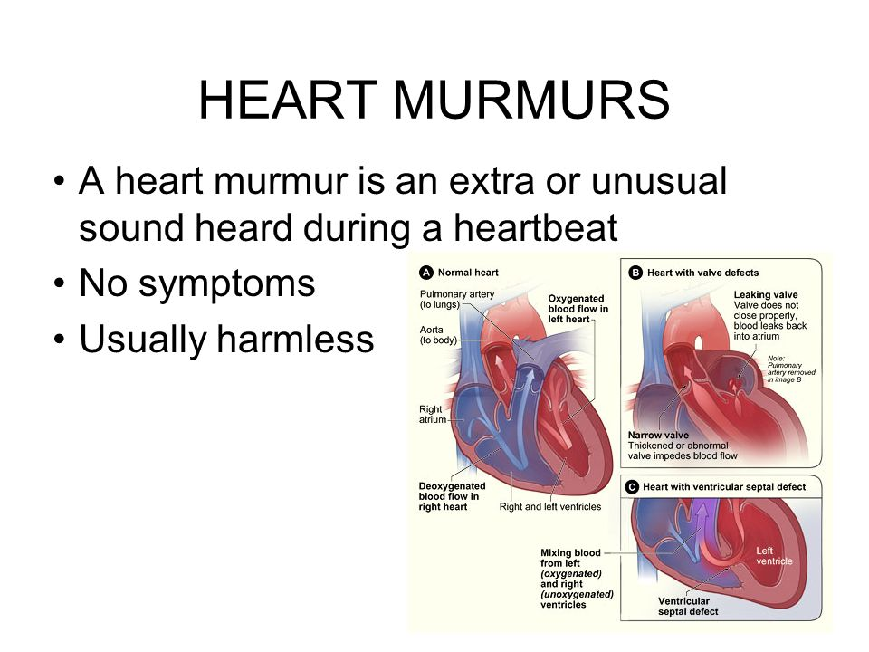 HEART MURMURS A heart murmur is an extra or unusual sound heard during a heartbeat No symptoms Usually harmless