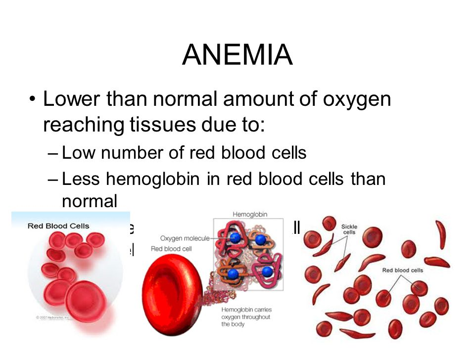 ANEMIA Lower than normal amount of oxygen reaching tissues due to: –Low number of red blood cells –Less hemoglobin in red blood cells than normal –Sic