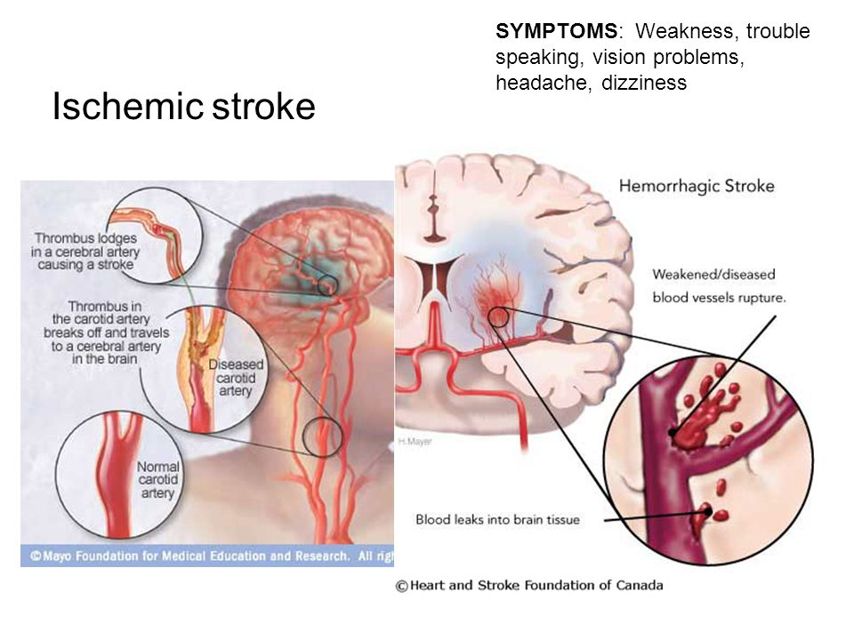Ischemic stroke SYMPTOMS: Weakness, trouble speaking, vision problems, headache, dizziness