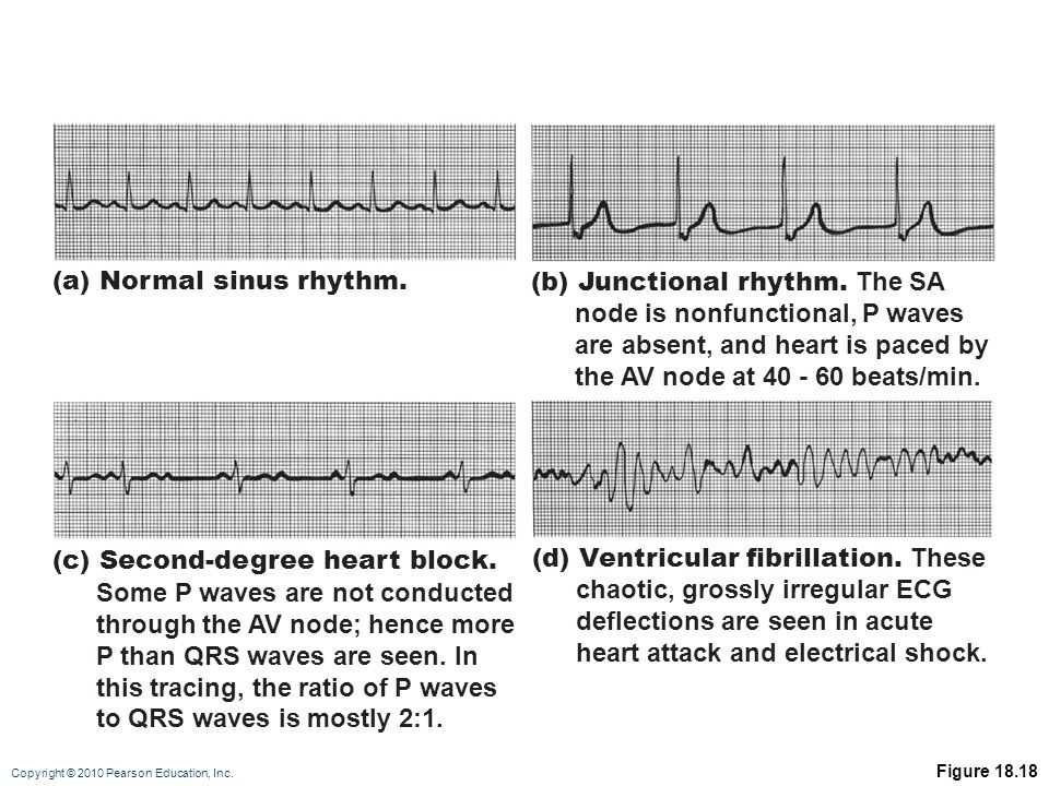 Copyright © 2010 Pearson Education, Inc.Figure 18.18 (a) Normal sinus rhythm.