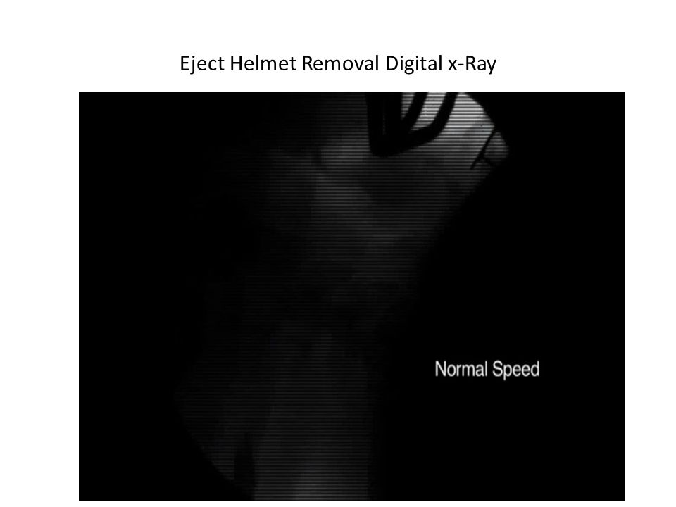 Eject Helmet Removal Digital x-Ray