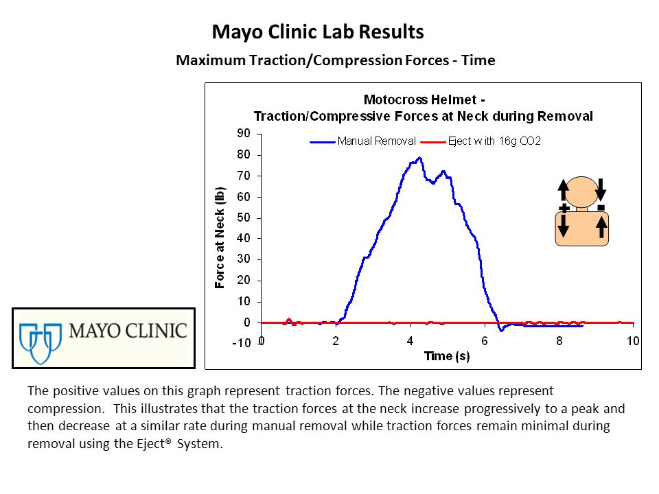 Mayo Clinic Lab Results The positive values on this graph represent traction forces.
