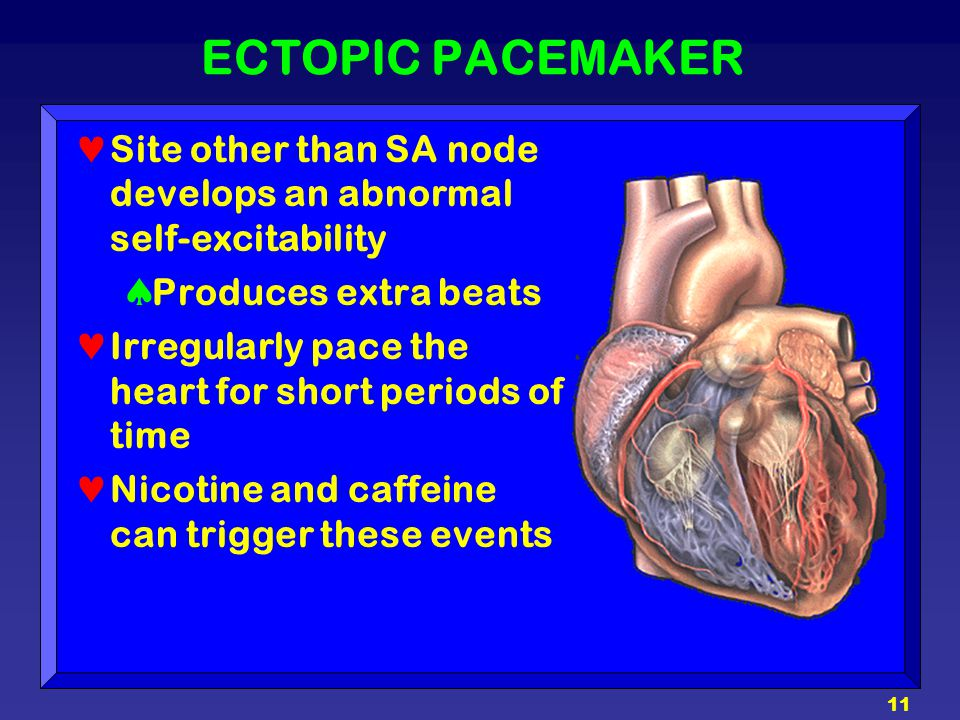 11 ECTOPIC PACEMAKER Site other than SA node develops an abnormal self-excitability  Produces extra beats Irregularly pace the heart for short period