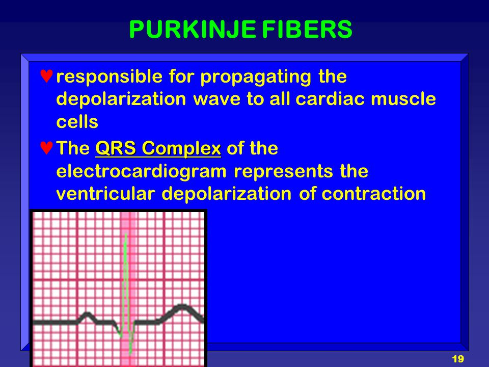 19 PURKINJE FIBERS responsible for propagating the depolarization wave to all cardiac muscle cells QRS Complex The QRS Complex of the electrocardiogra