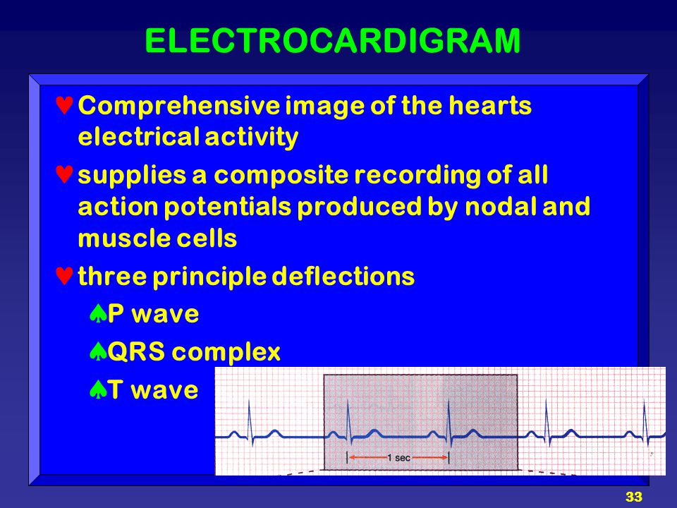 33 ELECTROCARDIGRAM Comprehensive image of the hearts electrical activity supplies a composite recording of all action potentials produced by nodal an