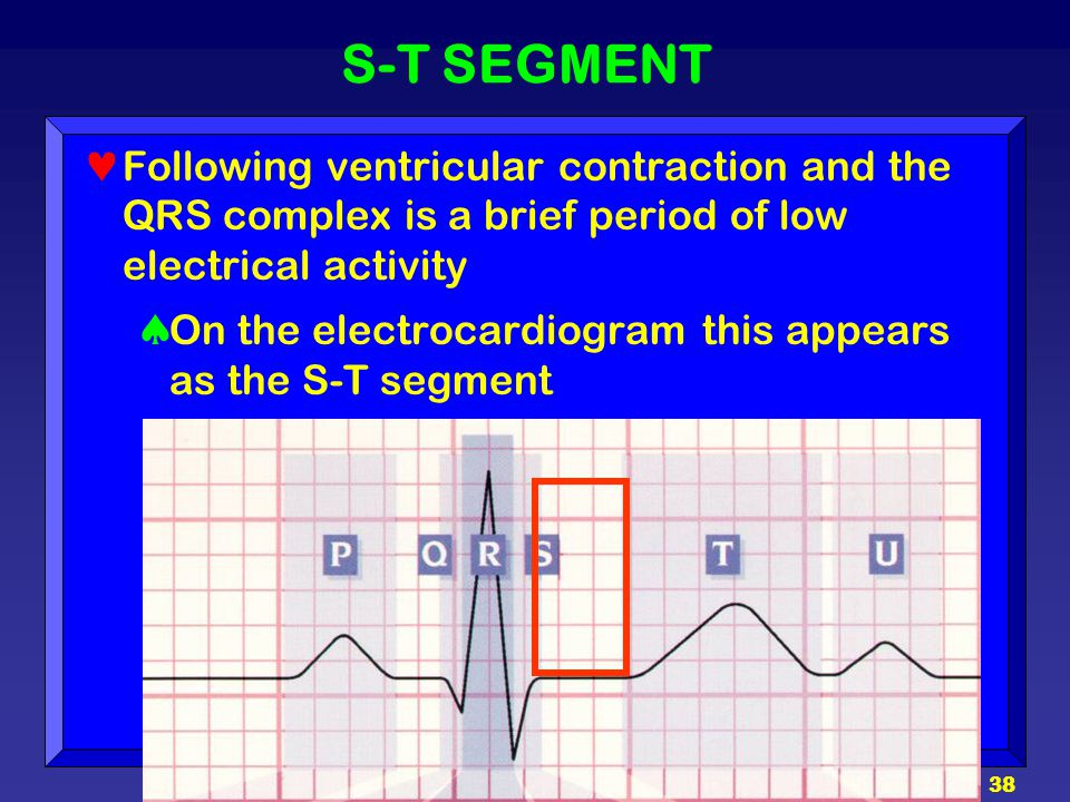 38 S-T SEGMENT Following ventricular contraction and the QRS complex is a brief period of low electrical activity  On the electrocardiogram this appe