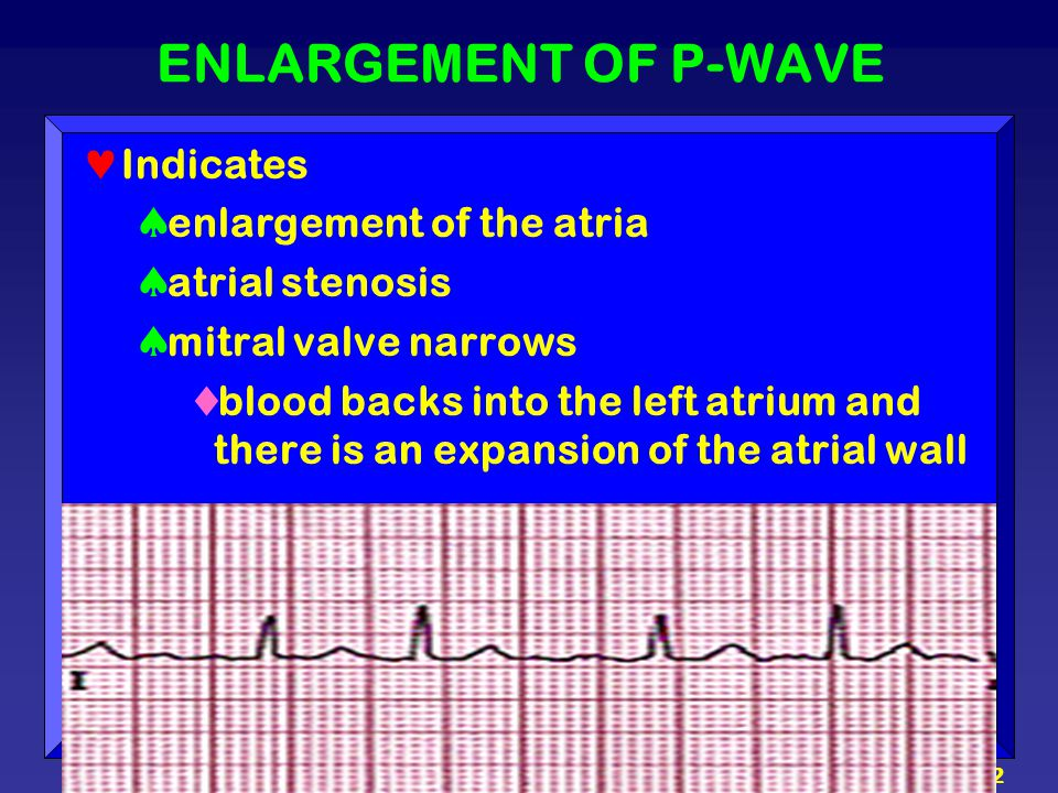 42 ENLARGEMENT OF P-WAVE Indicates  enlargement of the atria  atrial stenosis  mitral valve narrows  blood backs into the left atrium and there is