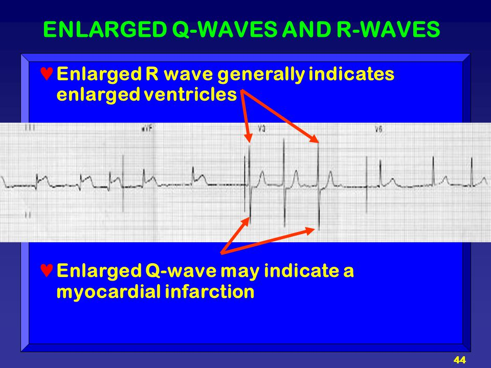 44 ENLARGED Q-WAVES AND R-WAVES Enlarged R wave generally indicates enlarged ventricles Enlarged Q-wave may indicate a myocardial infarction
