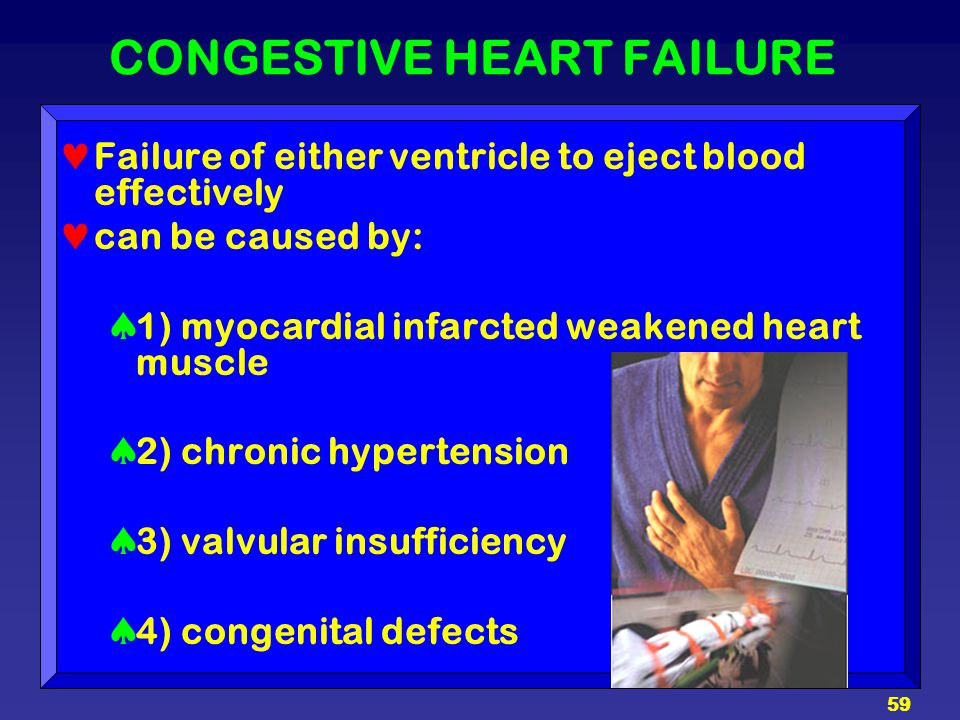 59 CONGESTIVE HEART FAILURE Failure of either ventricle to eject blood effectively can be caused by:  1) myocardial infarcted weakened heart muscle 