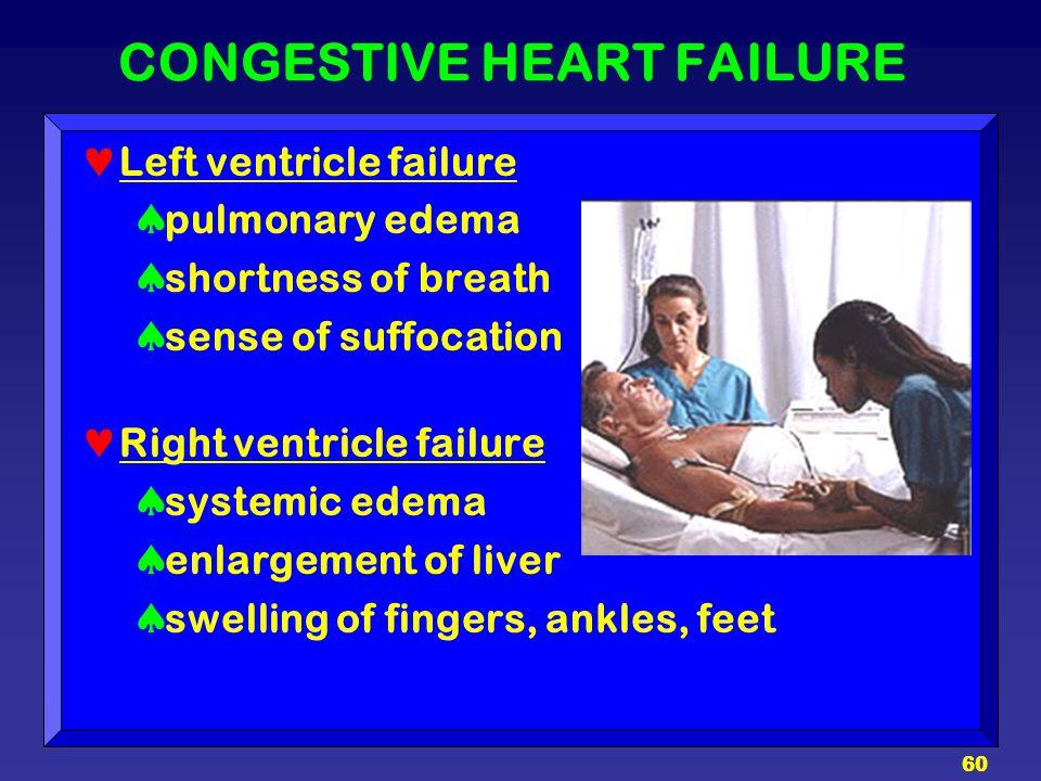 60 CONGESTIVE HEART FAILURE Left ventricle failure  pulmonary edema  shortness of breath  sense of suffocation Right ventricle failure  systemic e