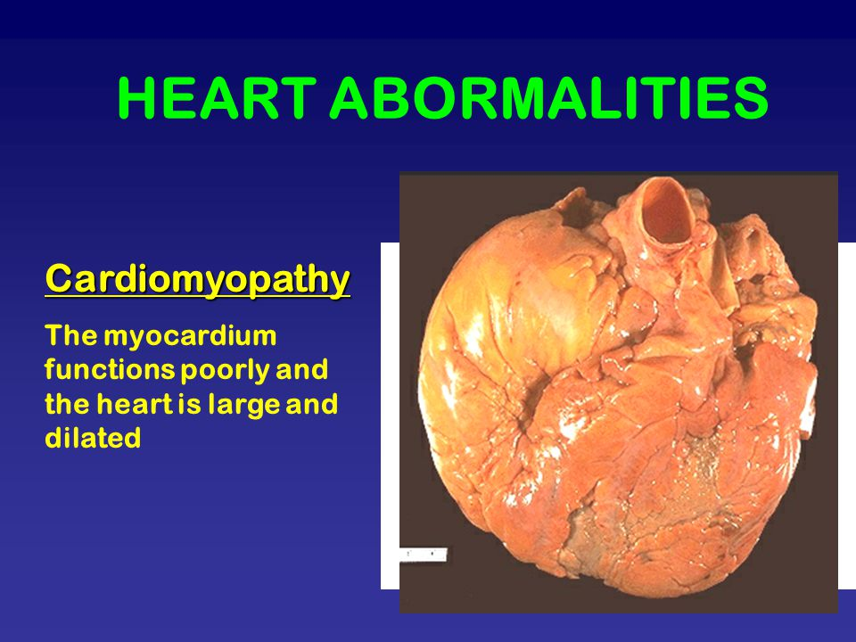 HEART ABORMALITIES Cardiomyopathy The myocardium functions poorly and the heart is large and dilated