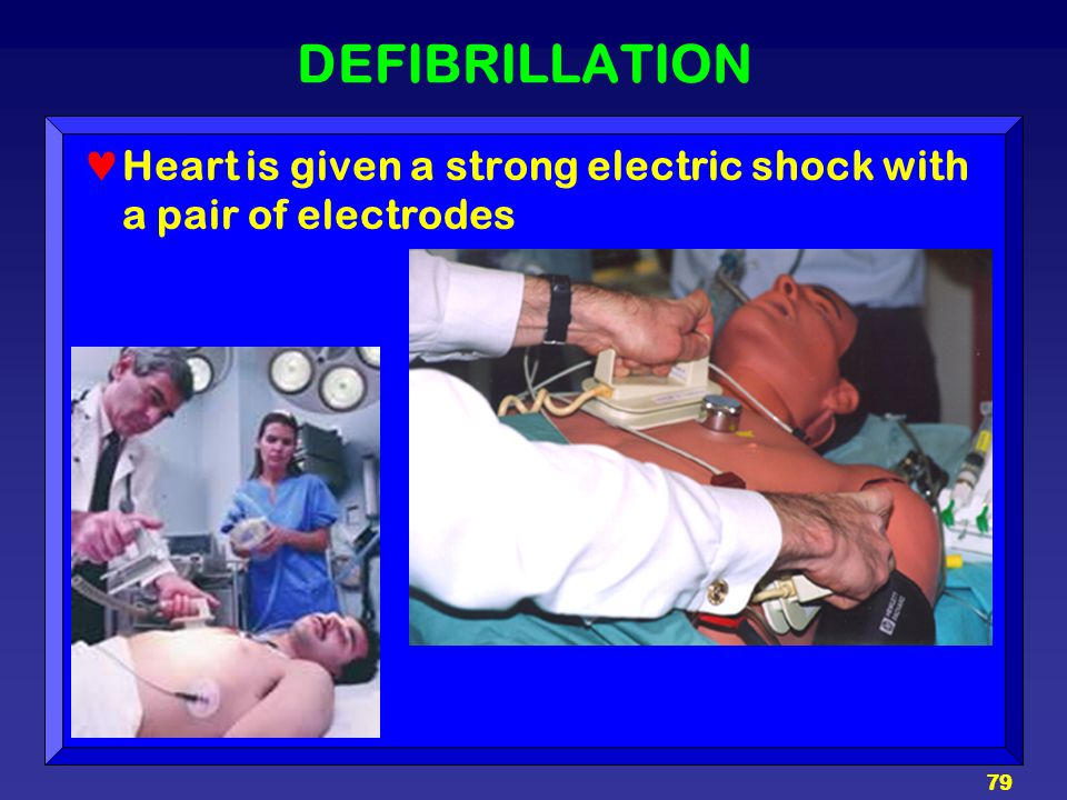 79 DEFIBRILLATION Heart is given a strong electric shock with a pair of electrodes