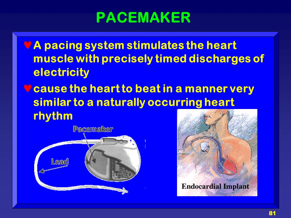 81 PACEMAKER A pacing system stimulates the heart muscle with precisely timed discharges of electricity cause the heart to beat in a manner very simil