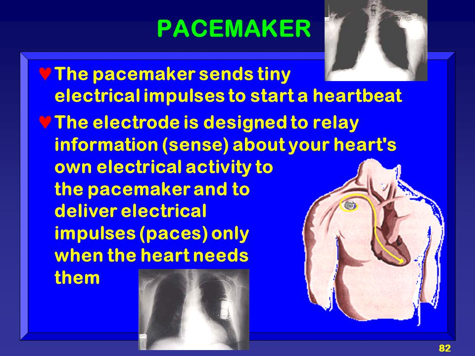 82 PACEMAKER The pacemaker sends tiny electrical impulses to start a heartbeat The electrode is designed to relay information (sense) about your heart