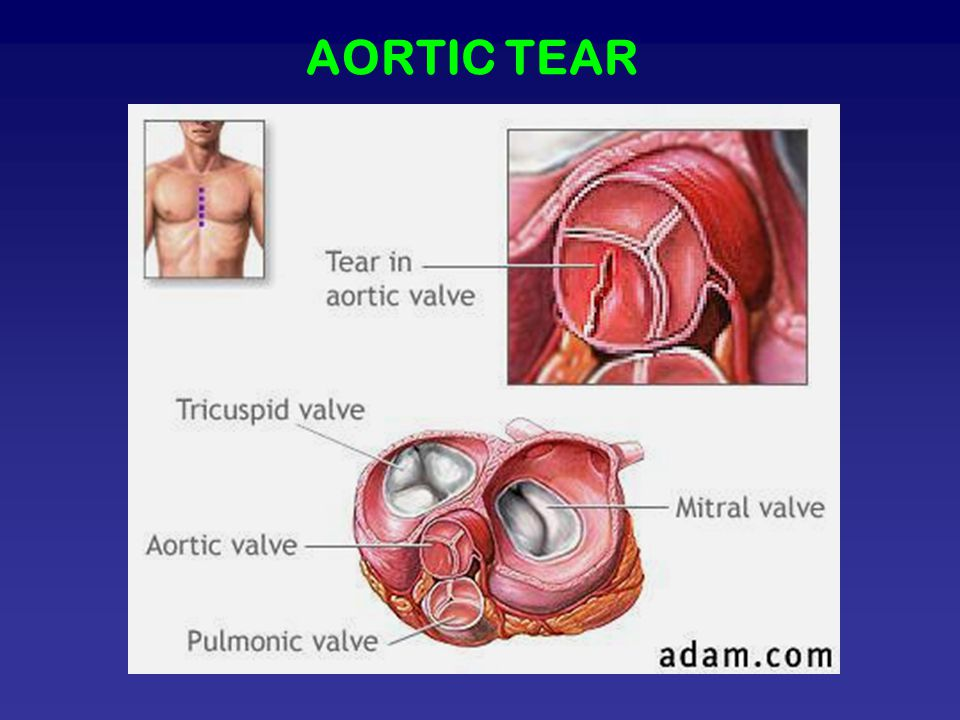 AORTIC TEAR