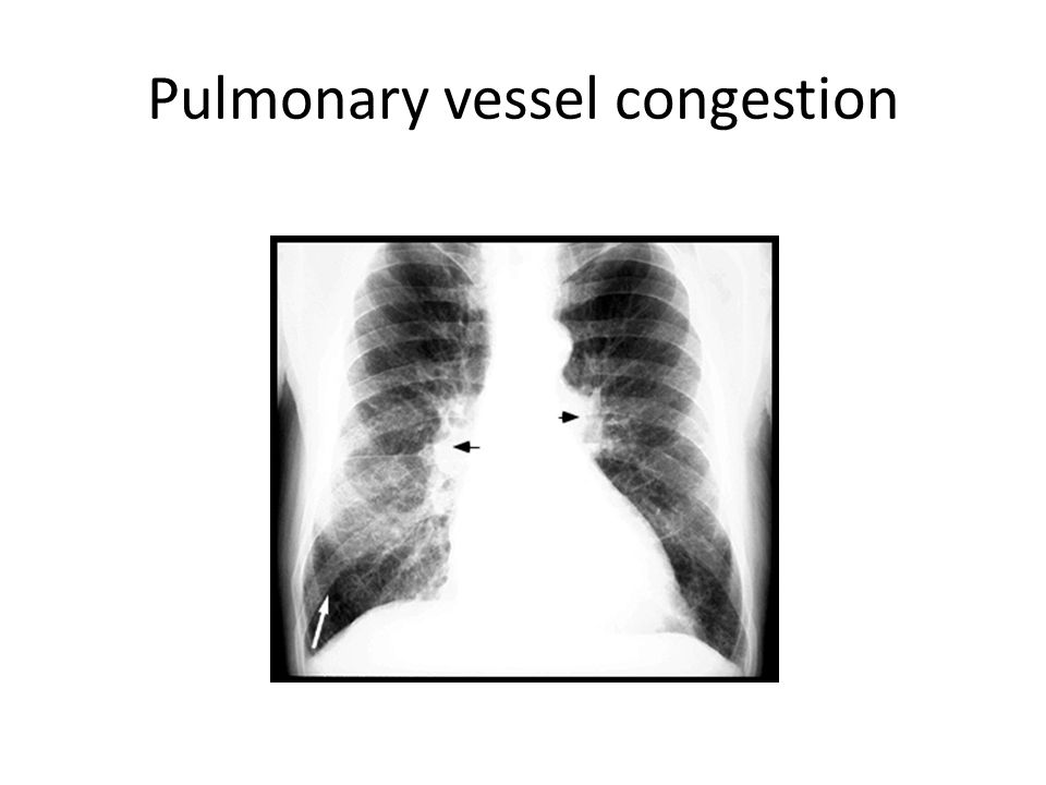 Pulmonary vessel congestion