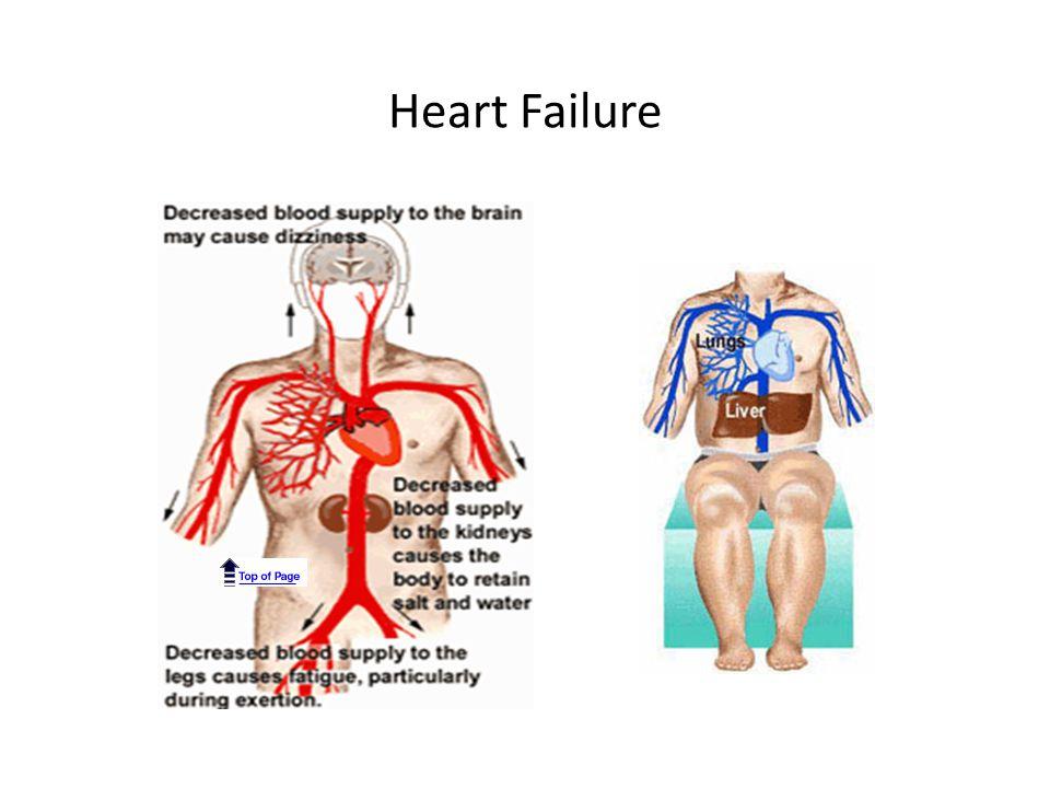 Systolic Heart Failure Systolic failure- most common cause – Hallmark finding: Dec.
