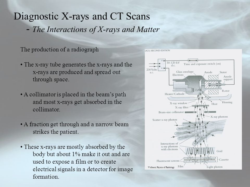Diagnostic X-rays and CT Scans - The Interactions of X-rays and Matter The production of a radiograph The x-ray tube generates the x-rays and the x-rays are produced and spread out through space.