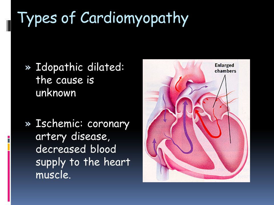 Types of Cardiomyopathy » Idopathic dilated: the cause is unknown » Ischemic: coronary artery disease, decreased blood supply to the heart muscle.