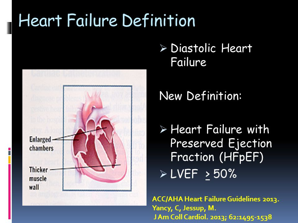 Heart Failure Definition  Diastolic Heart Failure New Definition:  Heart Failure with Preserved Ejection Fraction (HFpEF)  LVEF > 50% ACC/AHA Heart Failure Guidelines 2013.