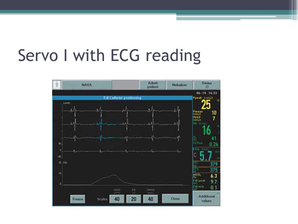 Servo I with ECG reading