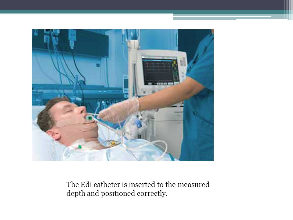 The Edi catheter is inserted to the measured depth and positioned correctly.