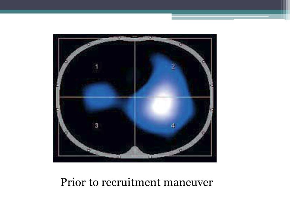 Prior to recruitment maneuver