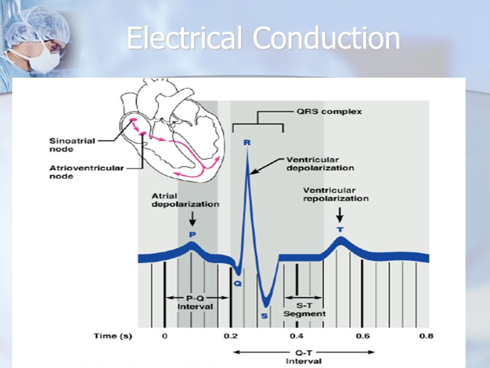 Electrical Conduction