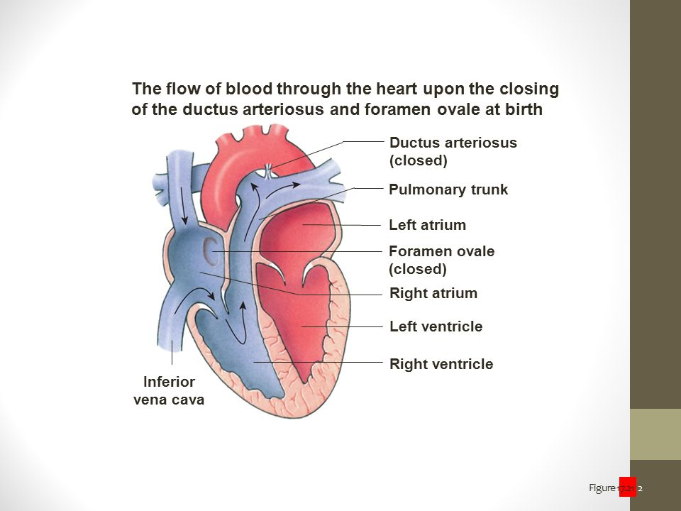 Figure 17.21 2 The flow of blood through the heart upon the closing of the ductus arteriosus and foramen ovale at birth Ductus arteriosus (closed) Pul