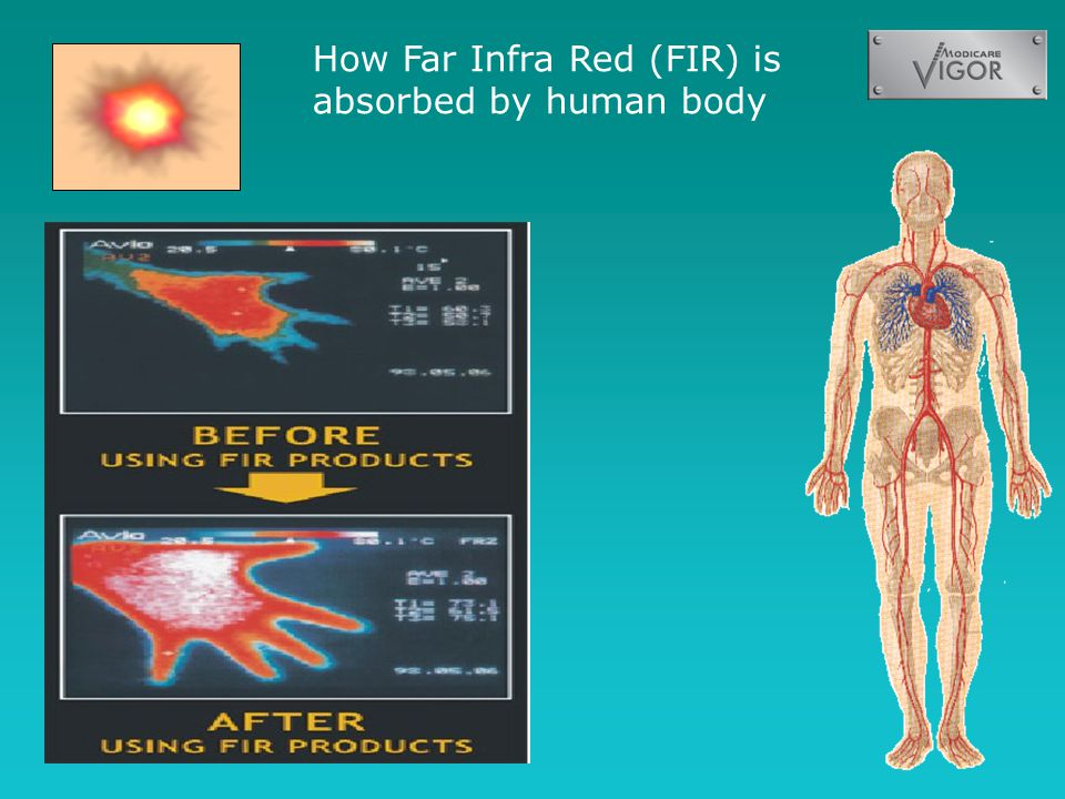 How Far Infra Red (FIR) is absorbed by human body