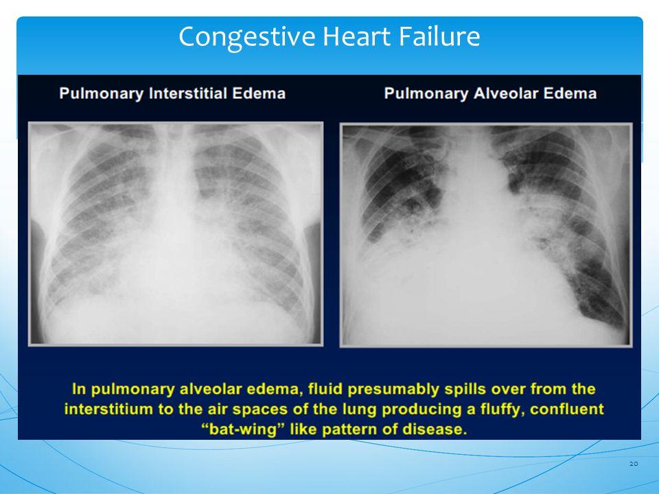Congestive Heart Failure 20