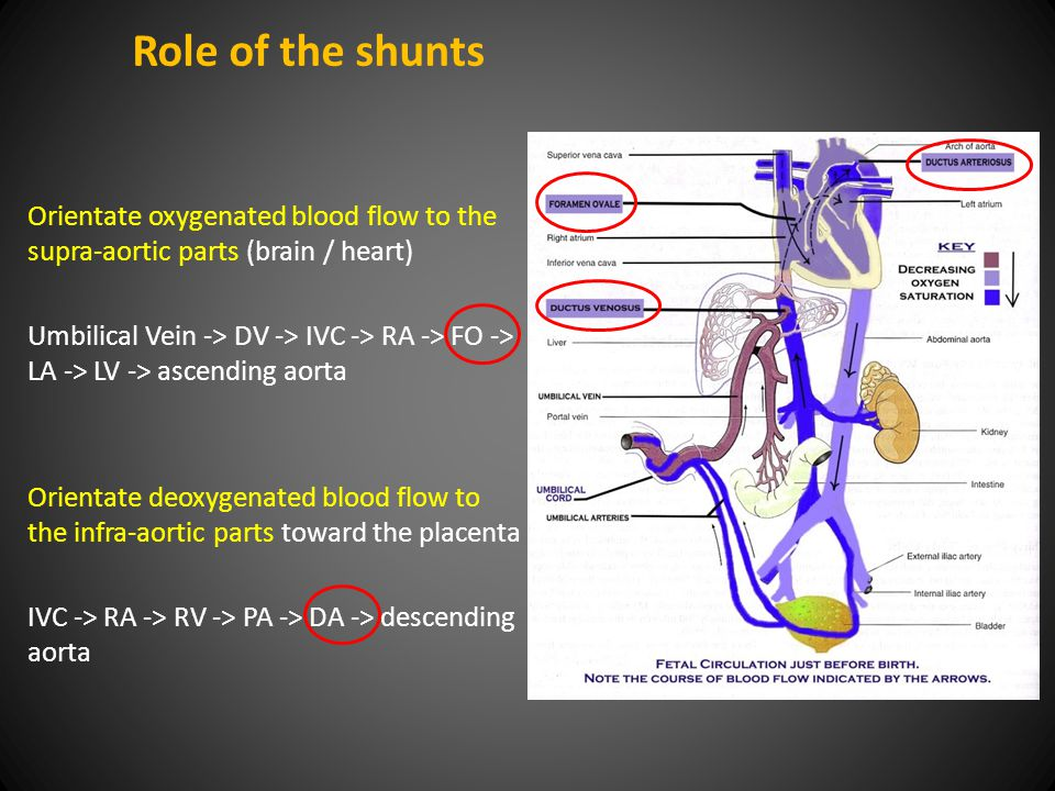Role of the shunts Orientate oxygenated blood flow to the supra-aortic parts (brain / heart) Umbilical Vein -> DV -> IVC -> RA -> FO -> LA -> LV -> ascending aorta Orientate deoxygenated blood flow to the infra-aortic parts toward the placenta IVC -> RA -> RV -> PA -> DA -> descending aorta