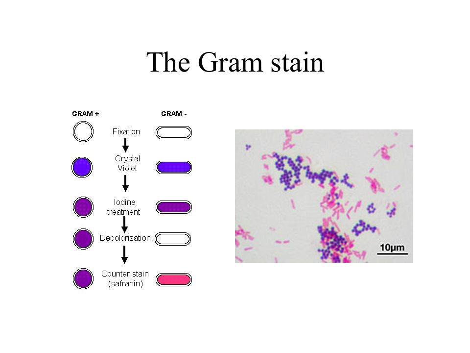 The Gram stain