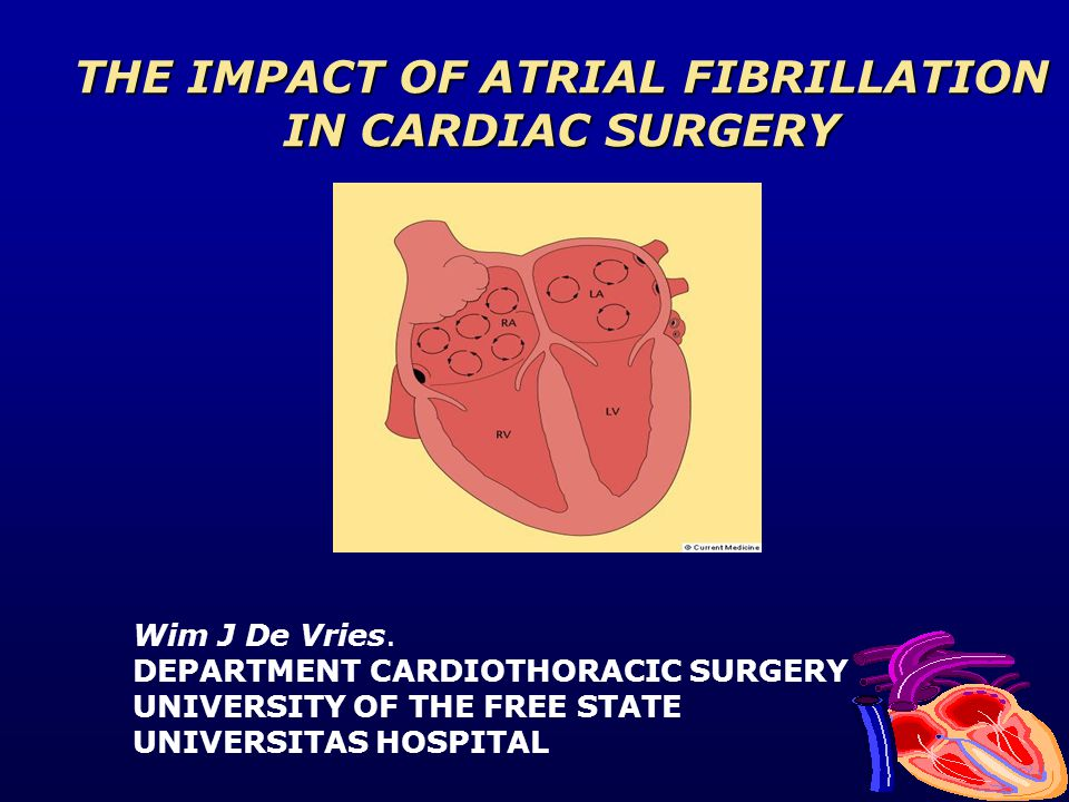 THE IMPACT OF ATRIAL FIBRILLATION IN CARDIAC SURGERY Wim J De Vries. DEPARTMENT CARDIOTHORACIC SURGERY UNIVERSITY OF THE FREE STATE UNIVERSITAS HOSPIT