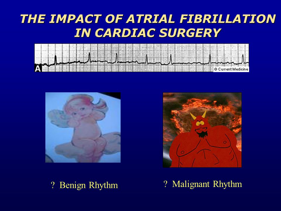 Benign Rhythm Malignant Rhythm THE IMPACT OF ATRIAL FIBRILLATION IN CARDIAC SURGERY