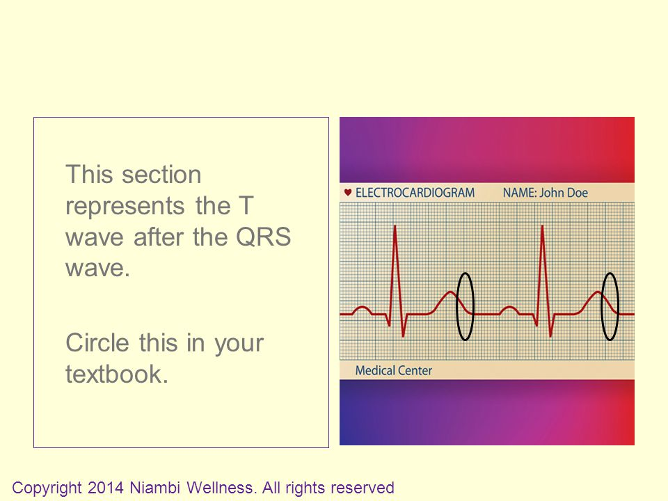This section represents the T wave after the QRS wave.